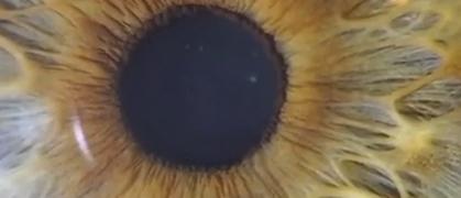 Video Motilità Pupillare