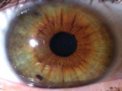 Come ridurre hypostases e rughe sotto occhi